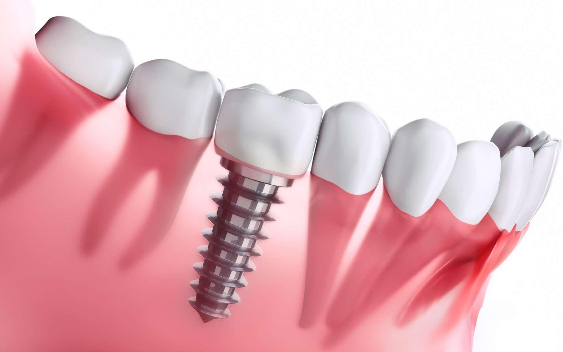 Implant dentaire : Un implant qui remplace la dent ?